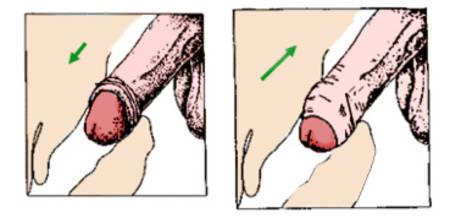 antibiotika nach geschlechtsverkehr beschneidung geschlechtsverkehr