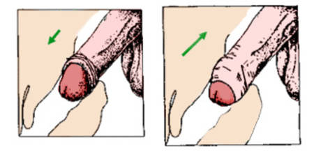 Penis innerhalb der Vagina Bilder