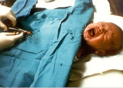 Erfahrungsberichte beschneidung Beschneidung von