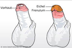 Beschneidung frenulum
