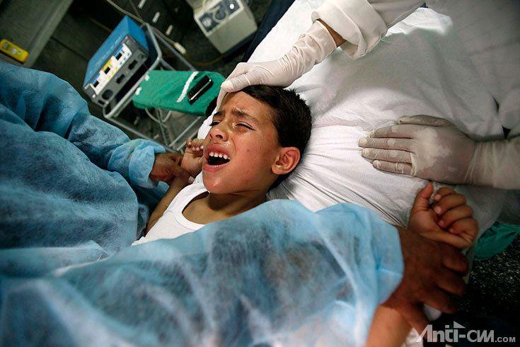 Beschneidung Bei Jungs Erfahrungen Eltern