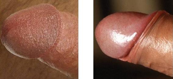 Beschnittenen Penis