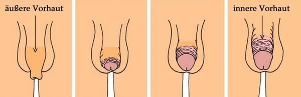 Eichel Vorhaut Vorhautbändchen - Beschneidung von Jungen